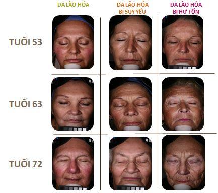 Để làn da luôn khoẻ mạnh, không lão hoá, bạn cần bắt đầu chăm sóc da từ khi còn trẻ.