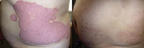 Hình ảnh bệnh vẩy nến trước và sau 8 tuần sử dụng sản phẩm Dr Michaels.