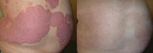 HÌnh ảnh bệnh vẩy nến trước và sau 8 tuần sử dụng sản phẩm Dr Michaels (Soratinex).