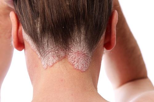 Bệnh vẩy nến thường xuất hiện ở đầu, ảnh hưởng đến thẩm mỹ, khiến người bệnh mất tự tin.